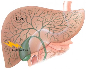 gall bladder diet after removal hair cream